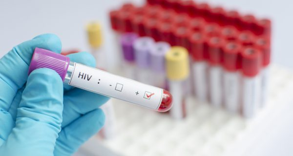 Blood sample positive with HIV